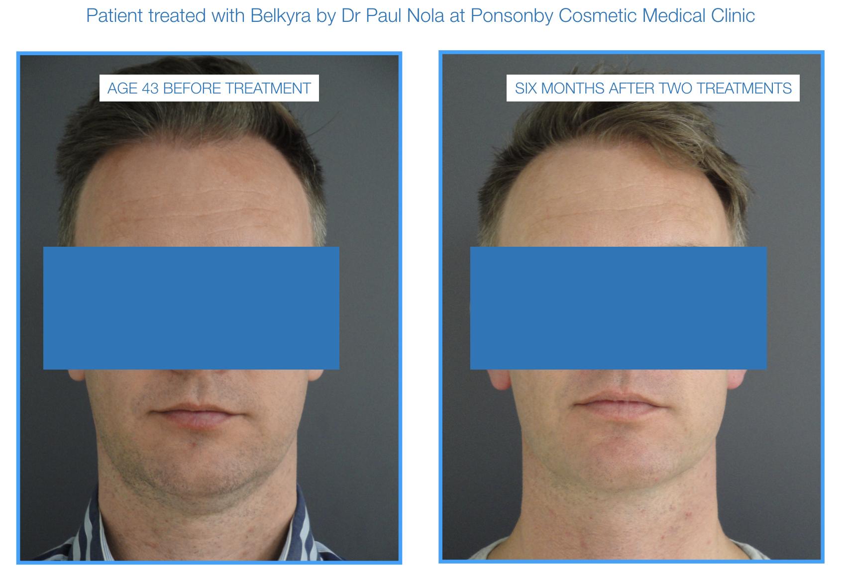 double chin treatment belkyra