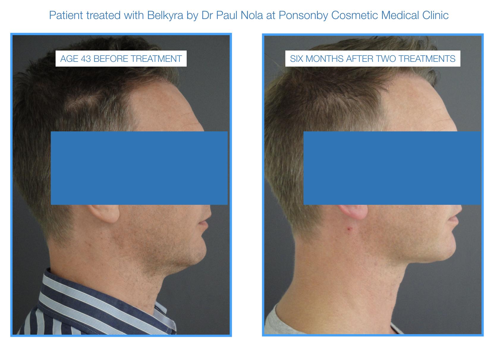 belkyra double chin